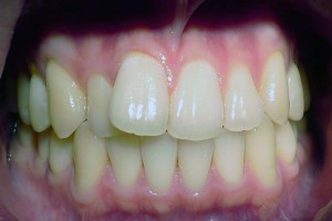 Orthodontics case 1