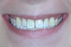 Orthodontics case 2